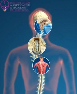 Método sanitario Filum System para diagnóstico y tratamiento del Síndrome de Arnold Chiari I, Siringomielia y Escoliosis idiopáticas, Platibasia, Impresión Basilar, Retroceso Odontoideo, Angulación del tronco cerebral, que componen el SÍNDROME NEURO-CRÁNEO-VERTEBRAL y la ENFERMEDAD DEL FILUM.